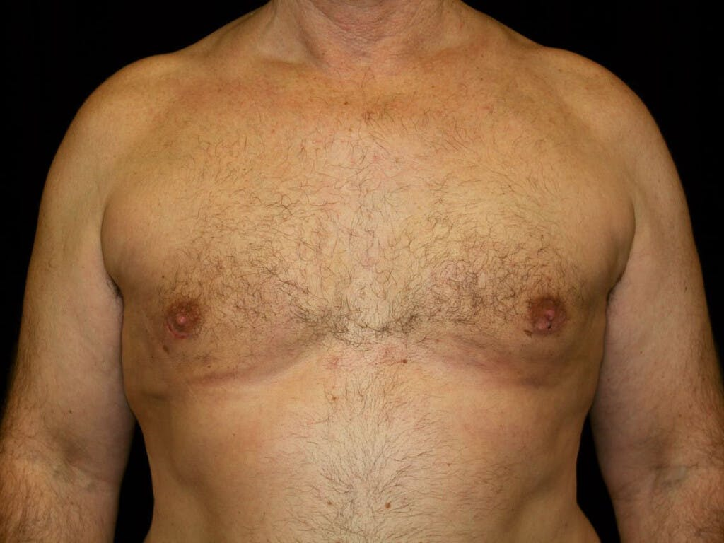 Gynecomastia Gallery - Patient 39352088 - Image 2