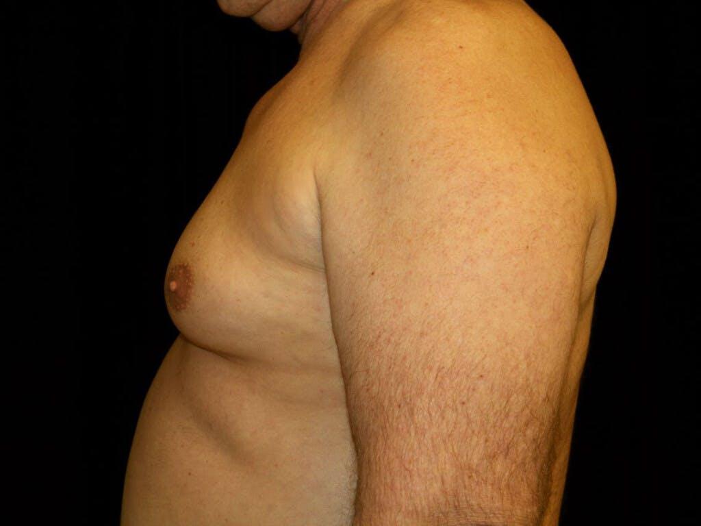Gynecomastia Gallery - Patient 39352088 - Image 3