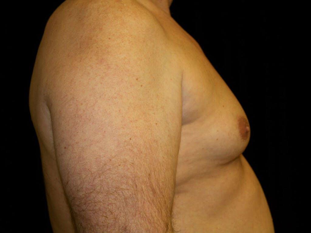 Gynecomastia Gallery - Patient 39352088 - Image 5