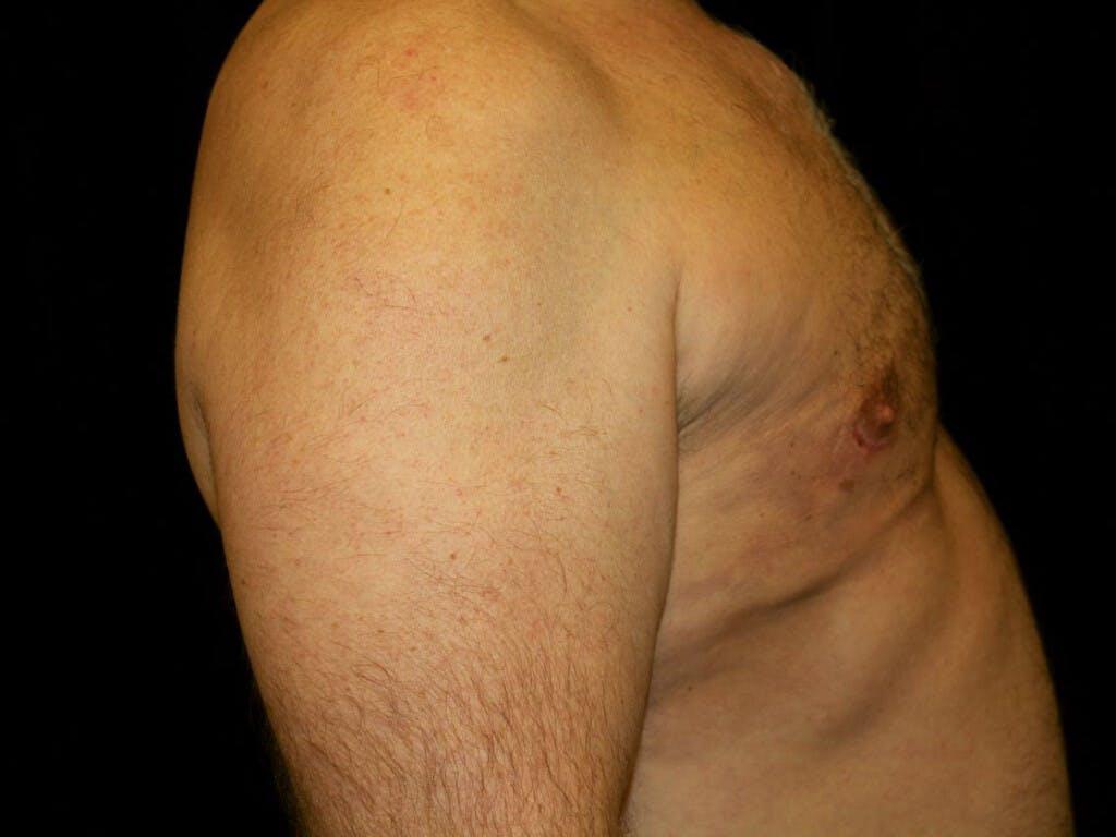 Gynecomastia Gallery - Patient 39352088 - Image 6