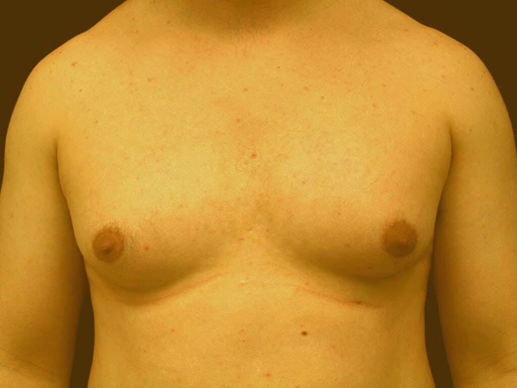Gynecomastia Gallery - Patient 39352091 - Image 1