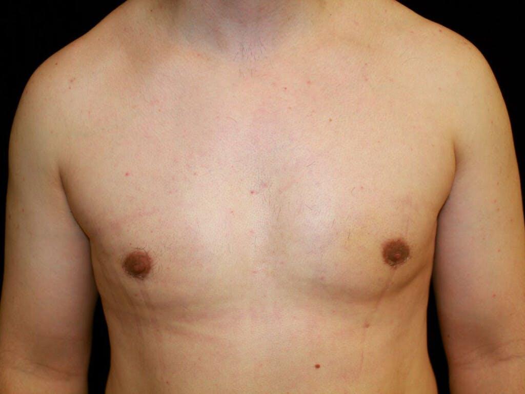 Gynecomastia Gallery - Patient 39352091 - Image 2