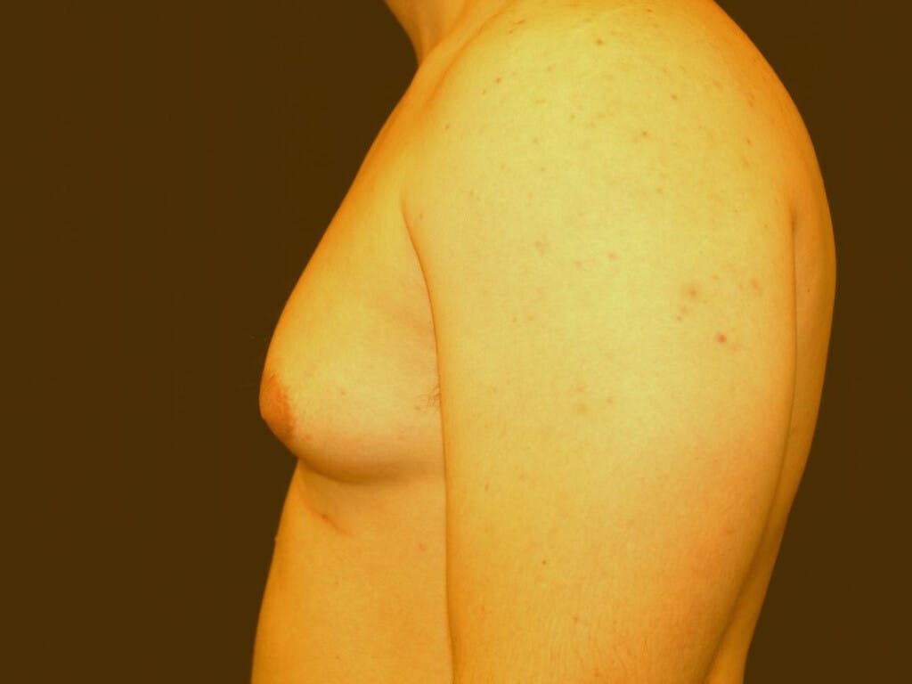 Gynecomastia Gallery - Patient 39352091 - Image 5