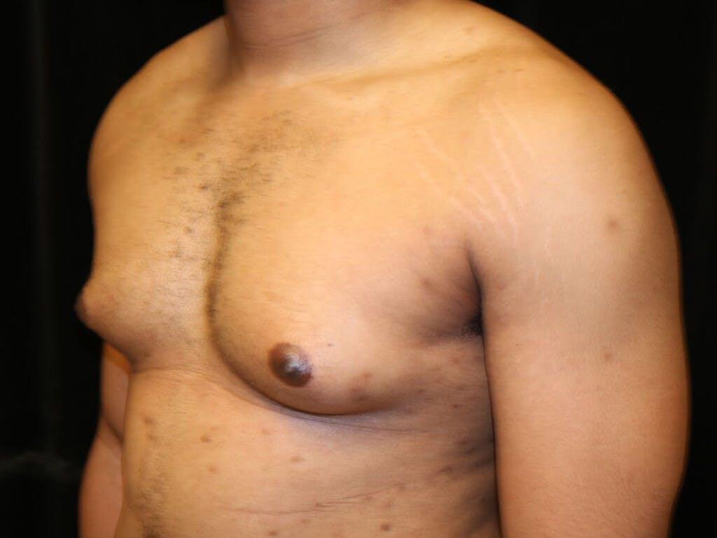 Gynecomastia Gallery - Patient 39352135 - Image 7