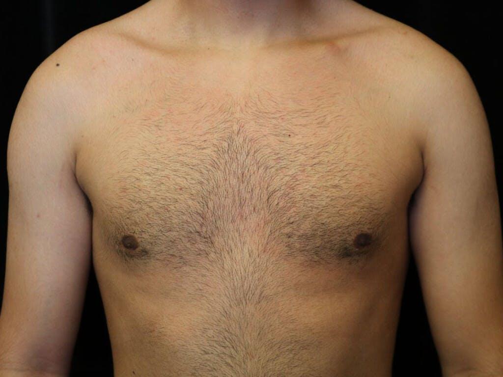 Gynecomastia Gallery - Patient 39352208 - Image 2