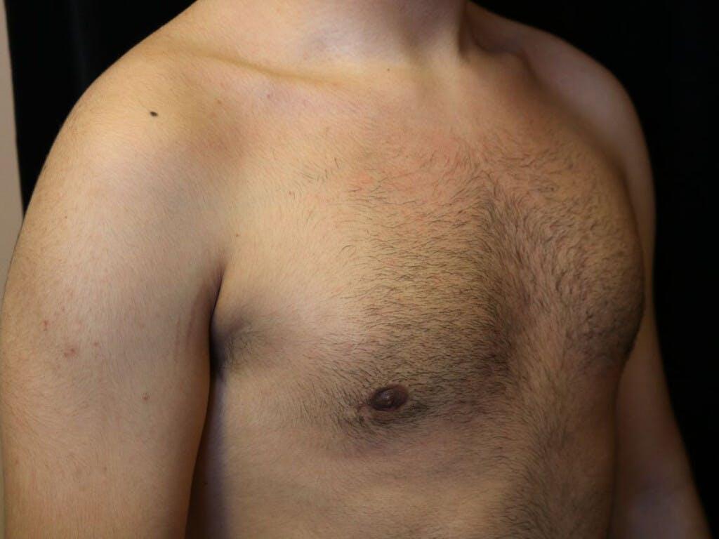 Gynecomastia Gallery - Patient 39352208 - Image 4