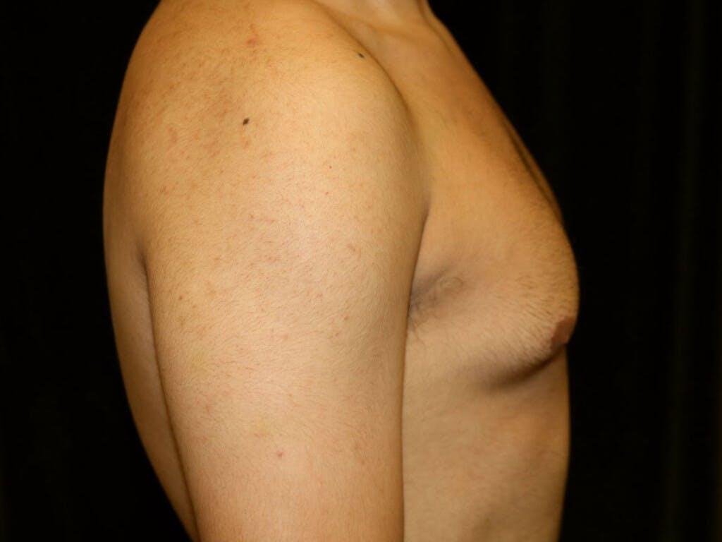 Gynecomastia Gallery - Patient 39352208 - Image 5