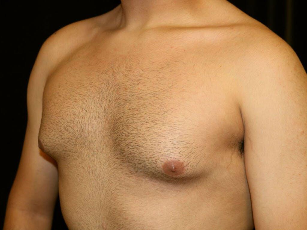 Gynecomastia Gallery - Patient 39352208 - Image 7