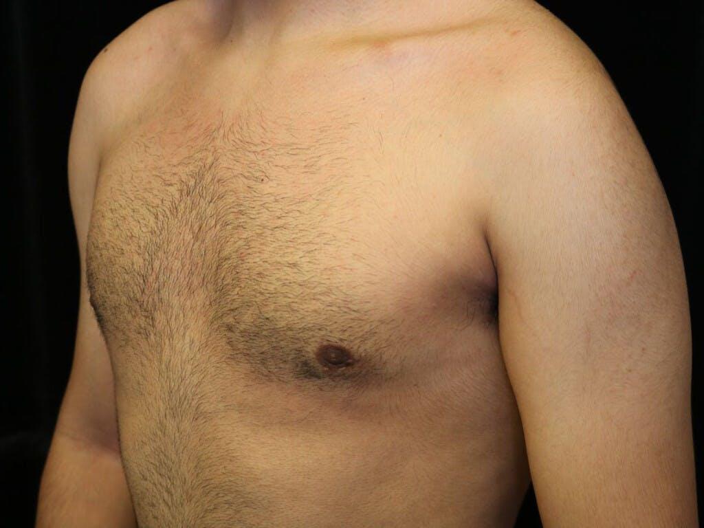 Gynecomastia Gallery - Patient 39352208 - Image 8