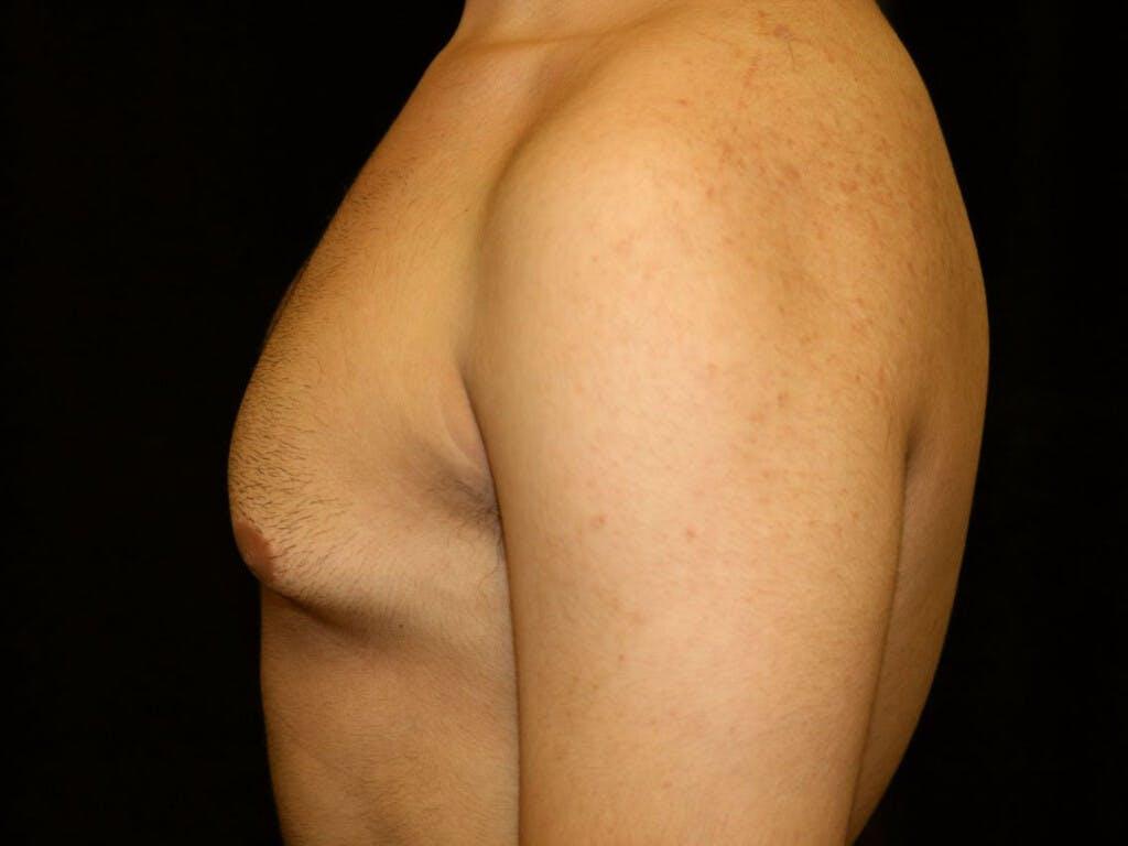 Gynecomastia Gallery - Patient 39352208 - Image 9