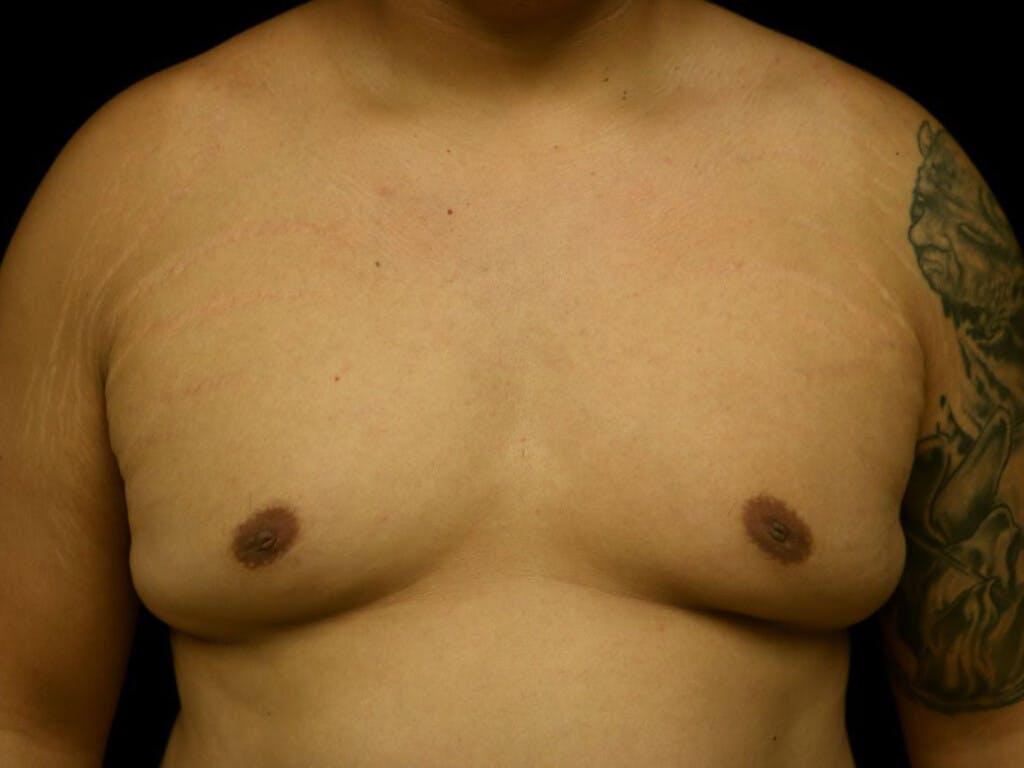 Gynecomastia Gallery - Patient 39352244 - Image 1