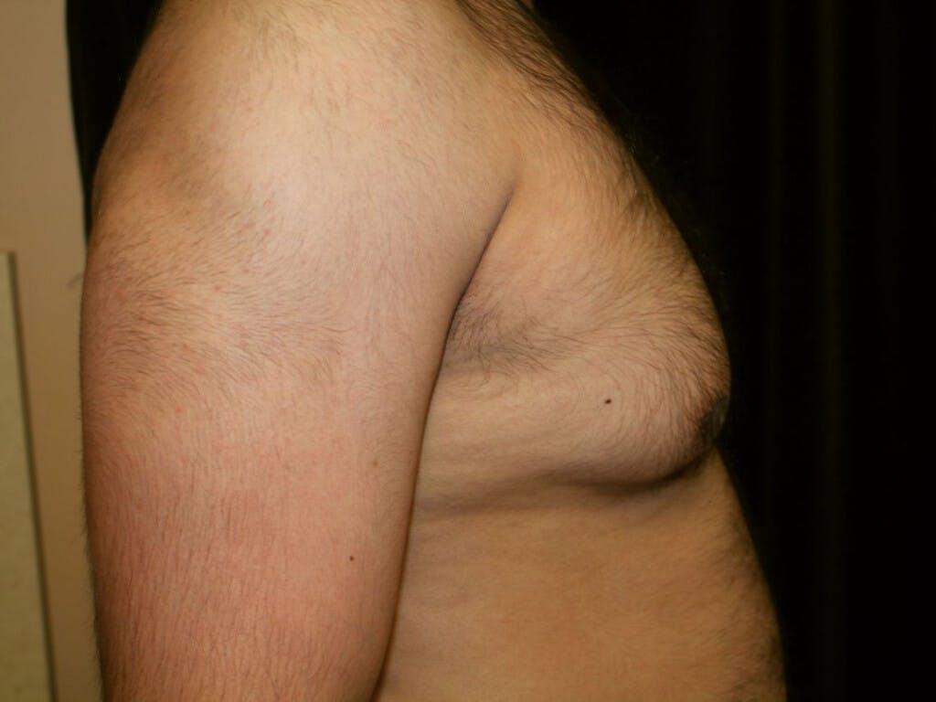 Gynecomastia Gallery - Patient 39352262 - Image 5