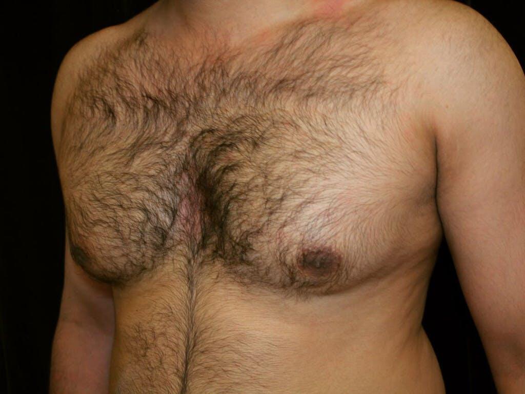 Gynecomastia Gallery - Patient 39352262 - Image 7