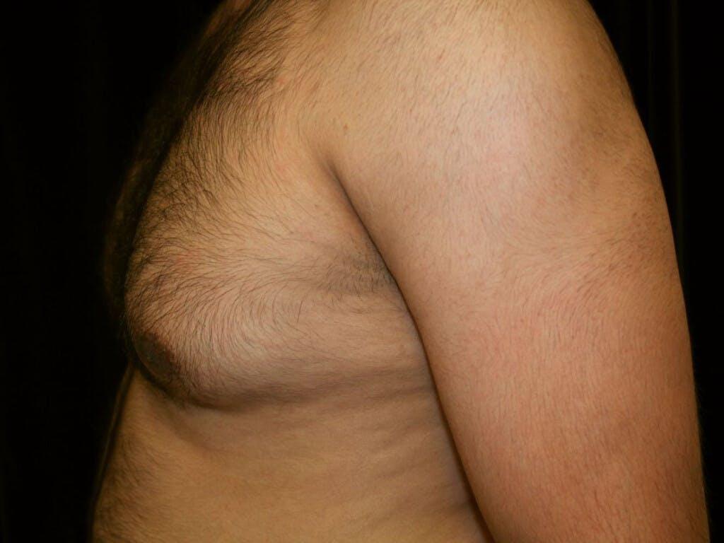 Gynecomastia Gallery - Patient 39352262 - Image 9