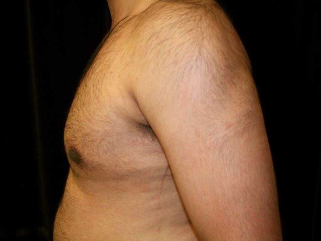 Gynecomastia Gallery - Patient 39352262 - Image 10