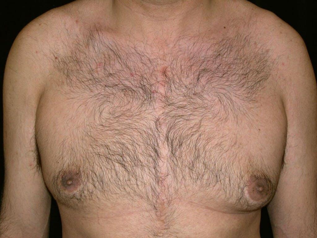 Gynecomastia Gallery - Patient 39352266 - Image 1