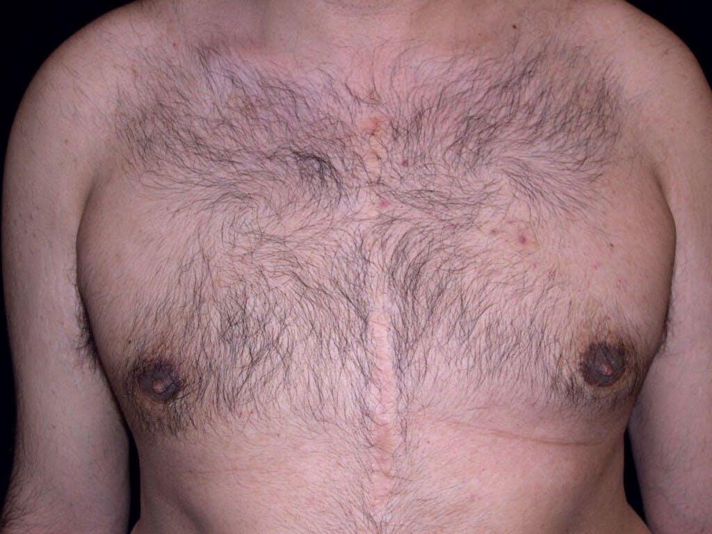 Gynecomastia Gallery - Patient 39352266 - Image 2
