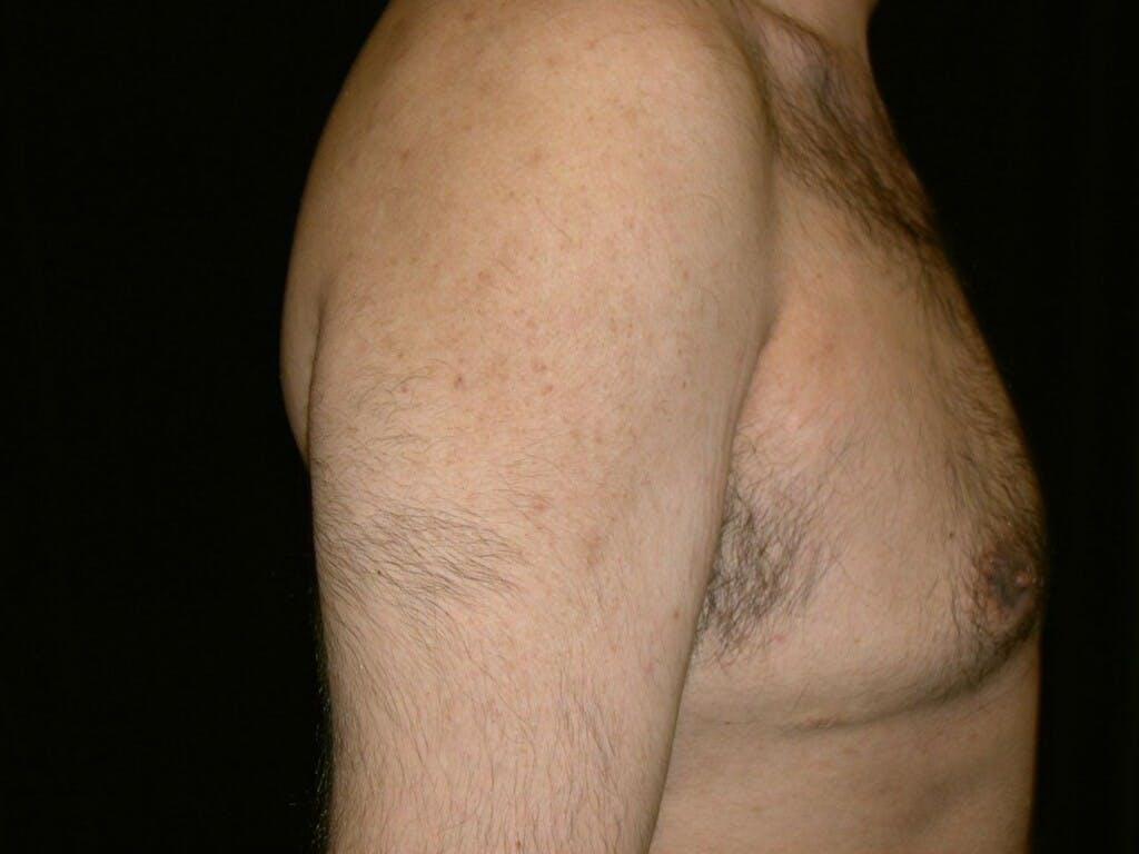 Gynecomastia Gallery - Patient 39352266 - Image 3