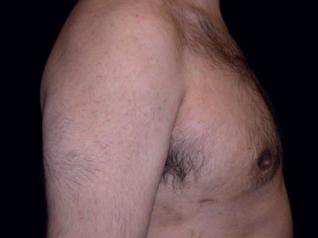 Gynecomastia Gallery - Patient 39352266 - Image 4