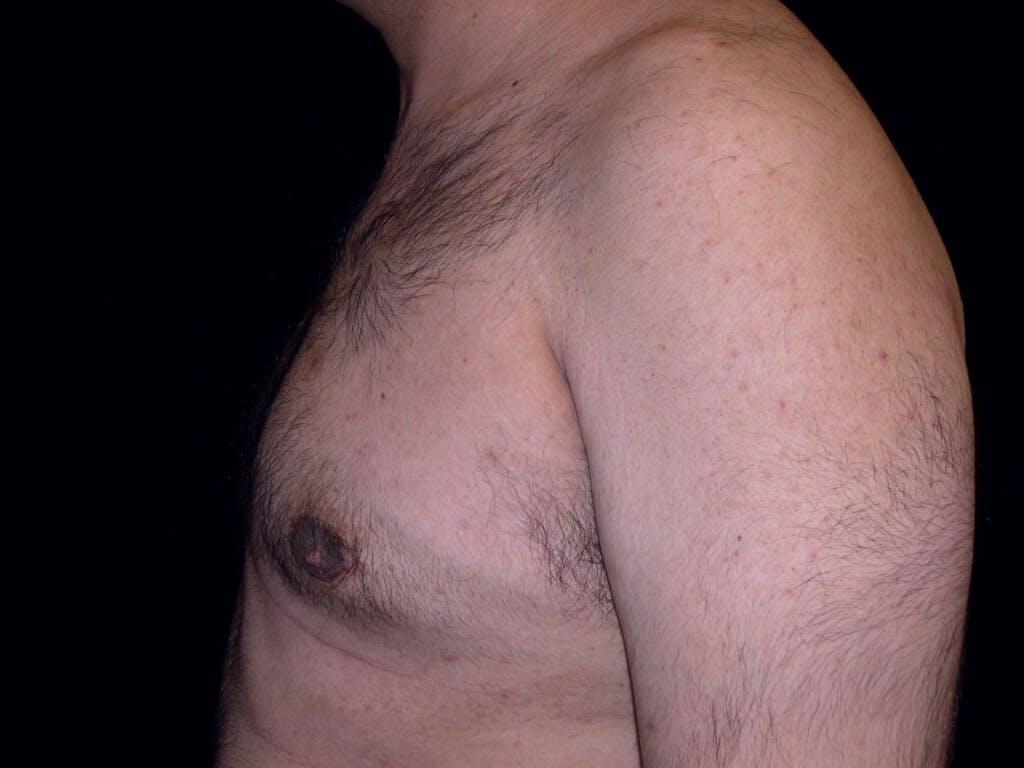 Gynecomastia Gallery - Patient 39352266 - Image 6