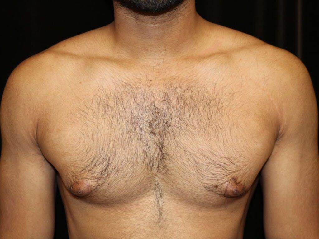Gynecomastia Gallery - Patient 39352280 - Image 1