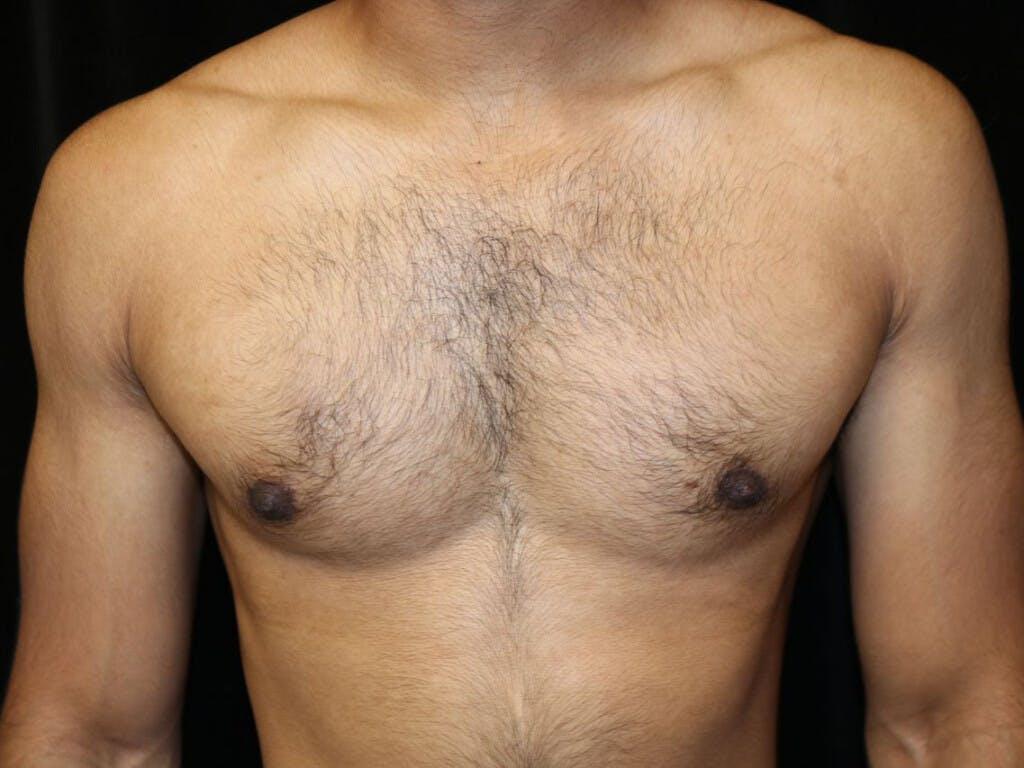 Gynecomastia Gallery - Patient 39352280 - Image 2