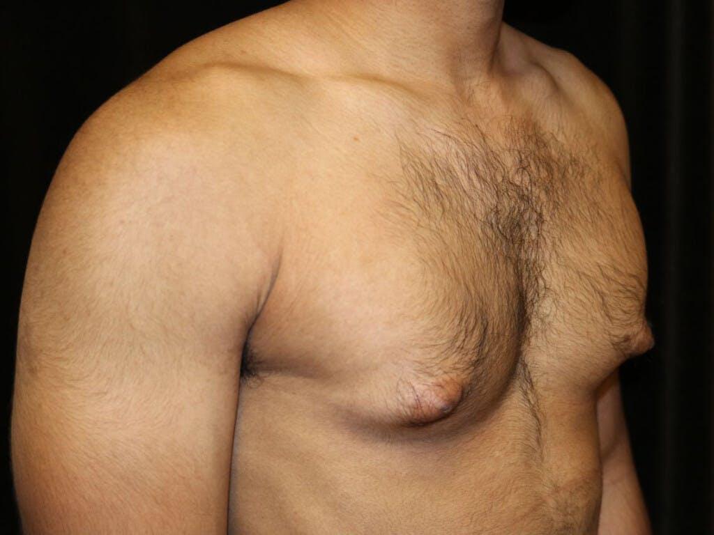 Gynecomastia Gallery - Patient 39352280 - Image 3