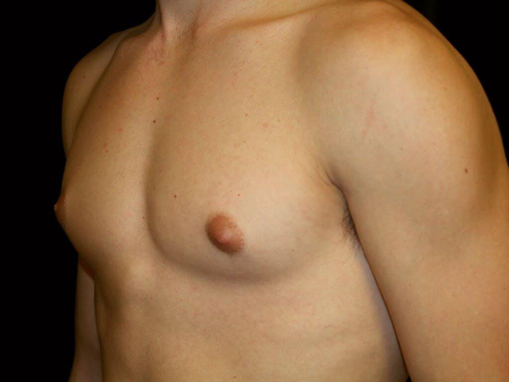 Gynecomastia Gallery - Patient 39352299 - Image 5
