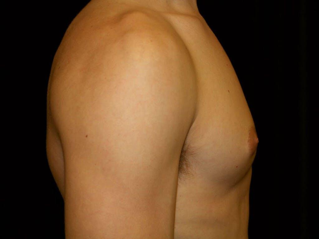 Gynecomastia Gallery - Patient 39352299 - Image 7
