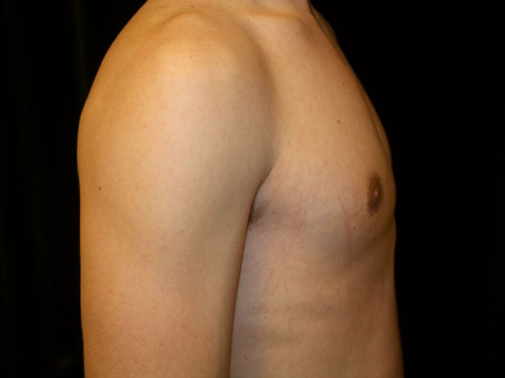 Gynecomastia Gallery - Patient 39352299 - Image 8