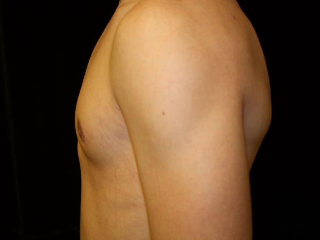 Gynecomastia Gallery - Patient 39352299 - Image 10