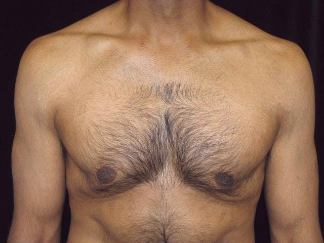 Gynecomastia Gallery - Patient 39352319 - Image 1