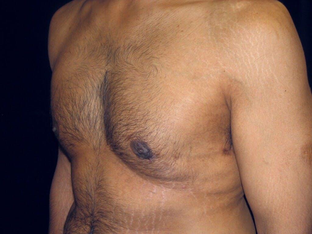 Gynecomastia Gallery - Patient 39352319 - Image 6