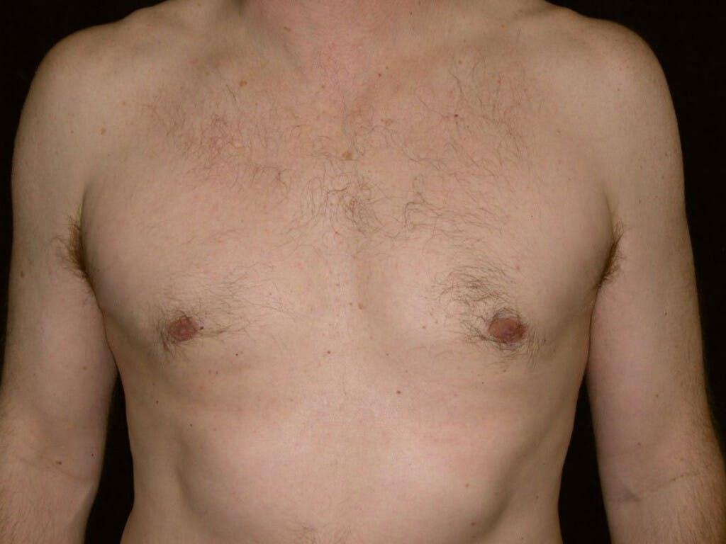Gynecomastia Gallery - Patient 39352337 - Image 2