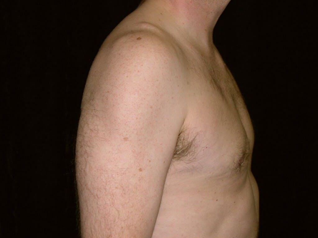 Gynecomastia Gallery - Patient 39352337 - Image 4