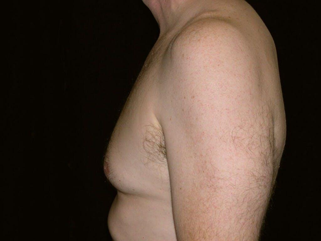 Gynecomastia Gallery - Patient 39352337 - Image 5