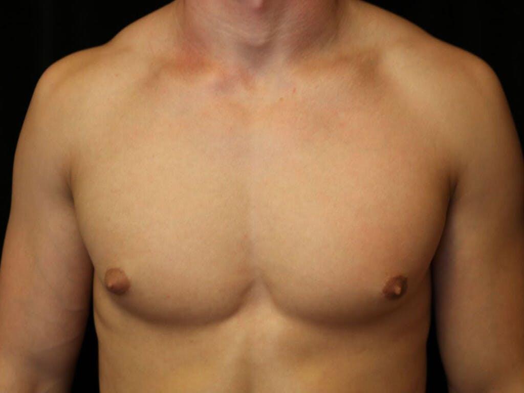 Gynecomastia Gallery - Patient 39352395 - Image 1