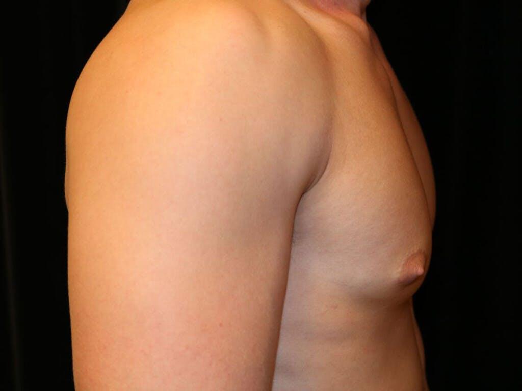 Gynecomastia Gallery - Patient 39352395 - Image 5