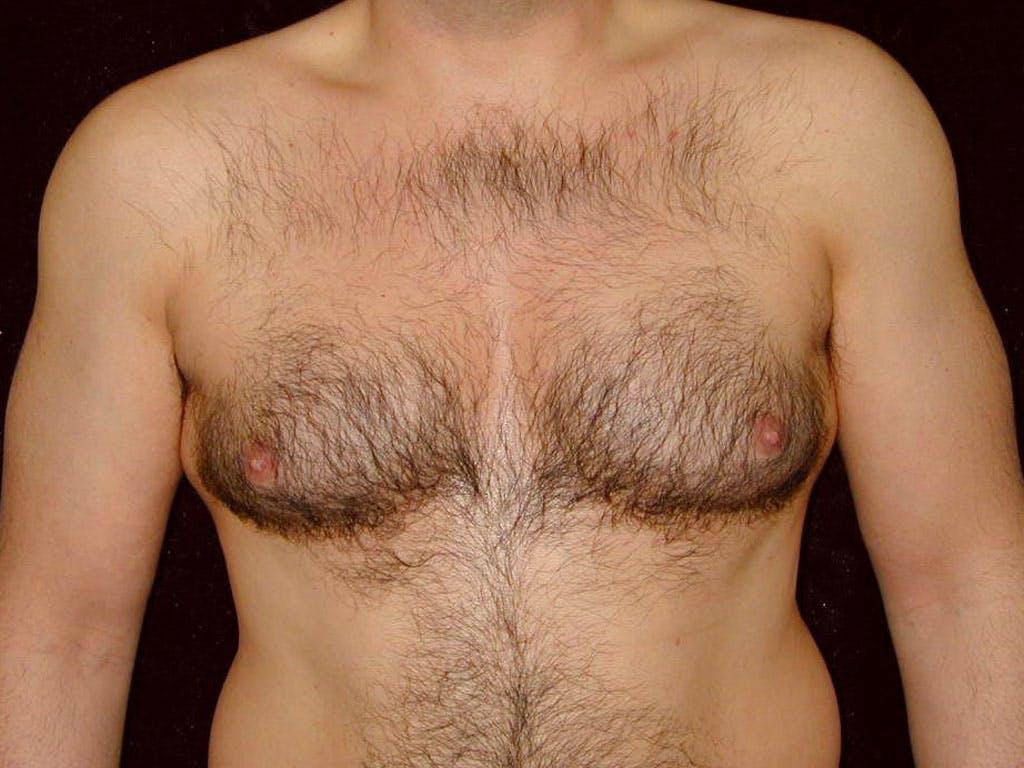 Gynecomastia Gallery - Patient 39352419 - Image 1