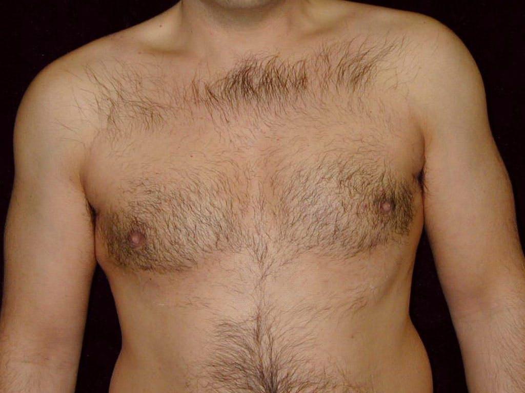 Gynecomastia Gallery - Patient 39352419 - Image 2
