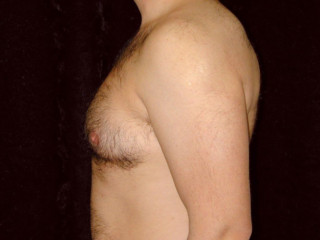 Gynecomastia Gallery - Patient 39352419 - Image 3