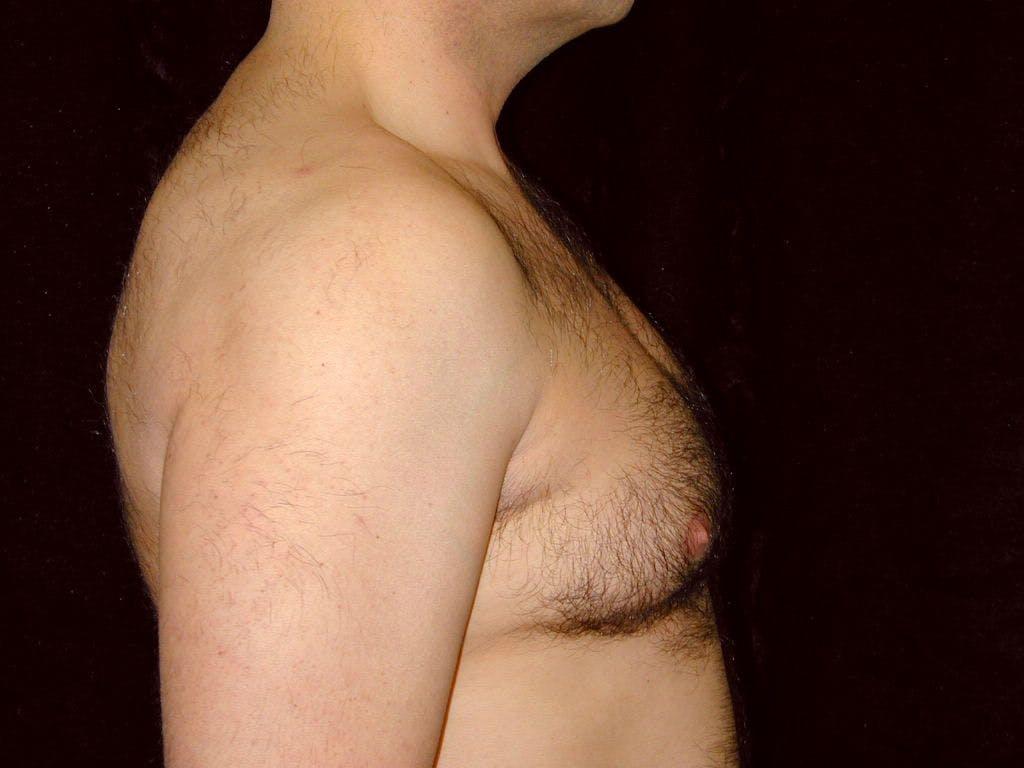 Gynecomastia Gallery - Patient 39352419 - Image 5