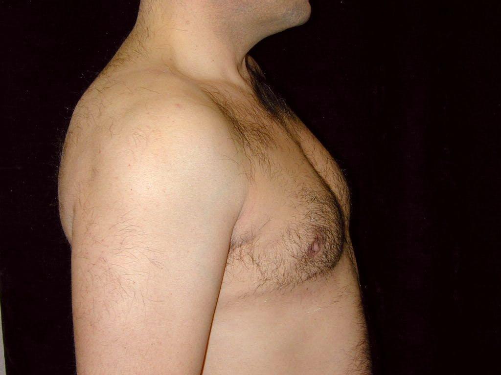 Gynecomastia Gallery - Patient 39352419 - Image 6
