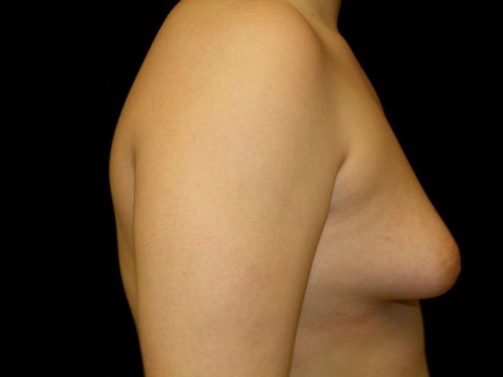 Gynecomastia Gallery - Patient 39352427 - Image 5