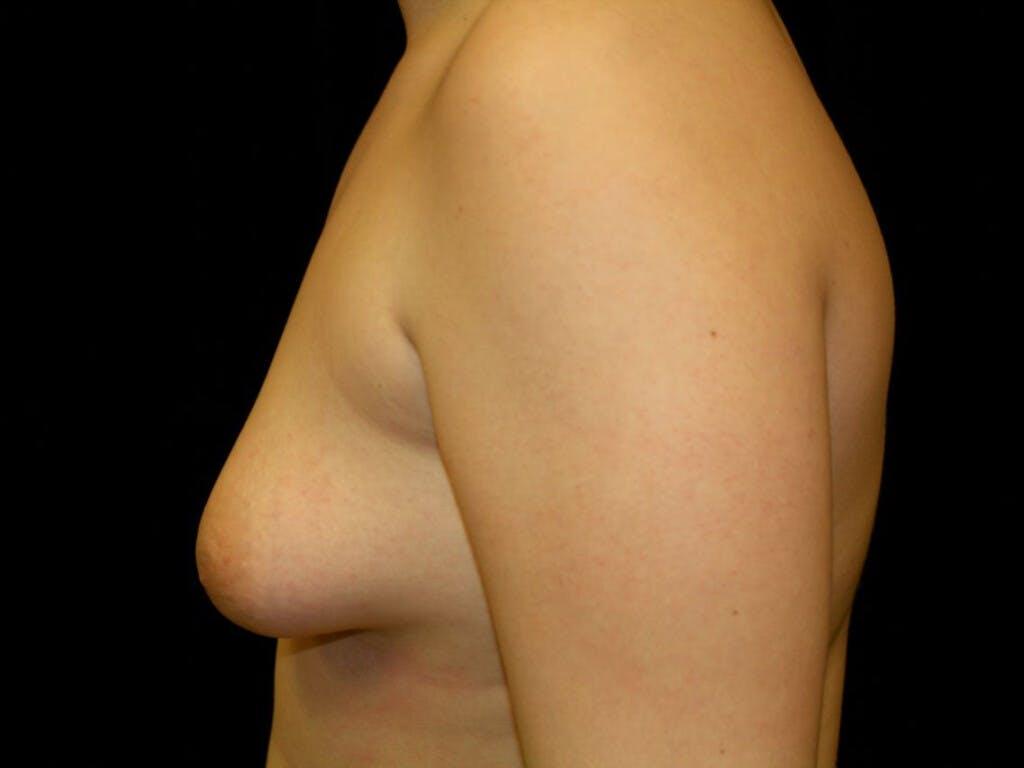 Gynecomastia Gallery - Patient 39352427 - Image 9