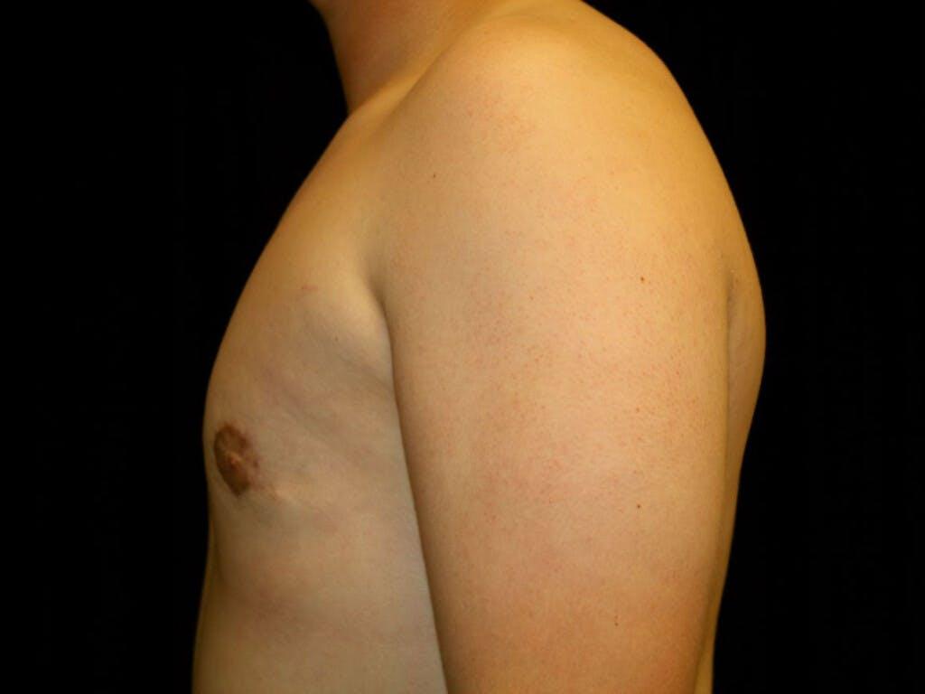 Gynecomastia Gallery - Patient 39352427 - Image 10