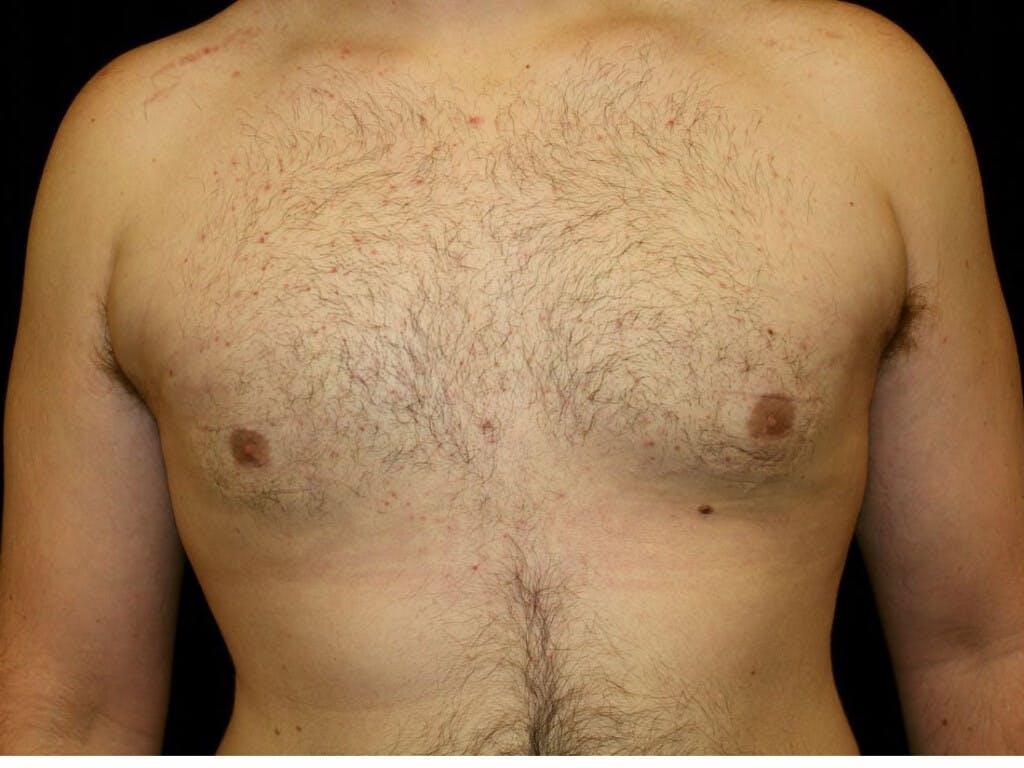 Gynecomastia Gallery - Patient 39352442 - Image 2