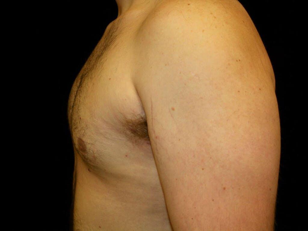 Gynecomastia Gallery - Patient 39352442 - Image 4