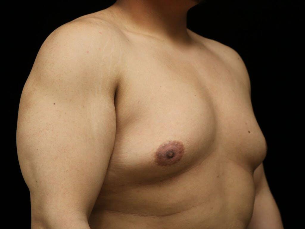 Gynecomastia Gallery - Patient 39352457 - Image 3