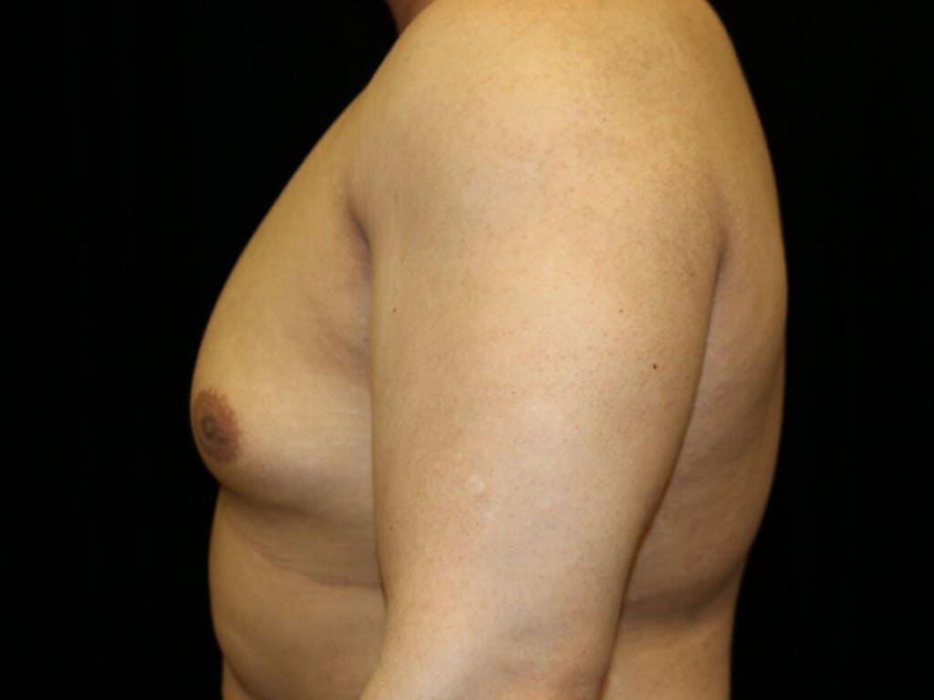 Gynecomastia Gallery - Patient 39352457 - Image 7